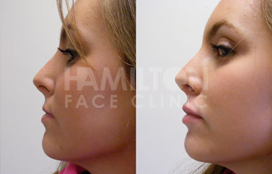 Photo of cosmetic treatment before and after